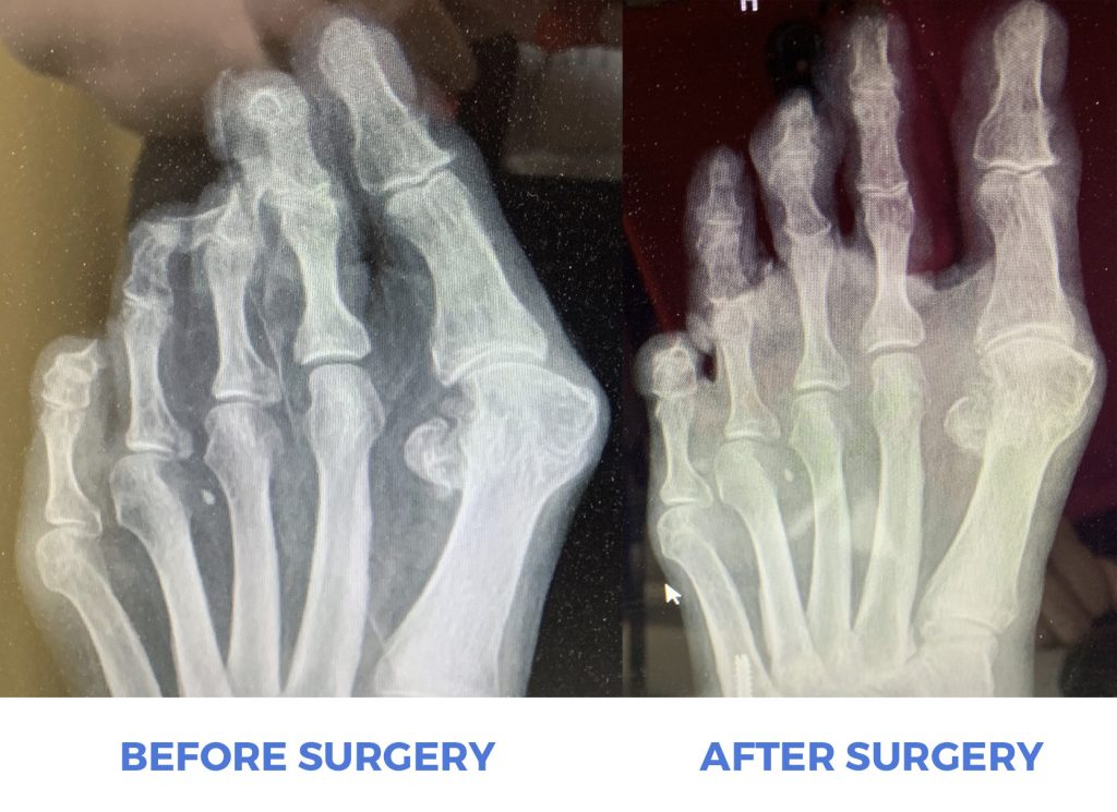Before And After Photo of Hammertoe Surgery